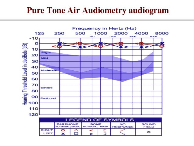 Masking in pure-tone audiometry pdf