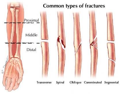 Types of bone fractures pdf