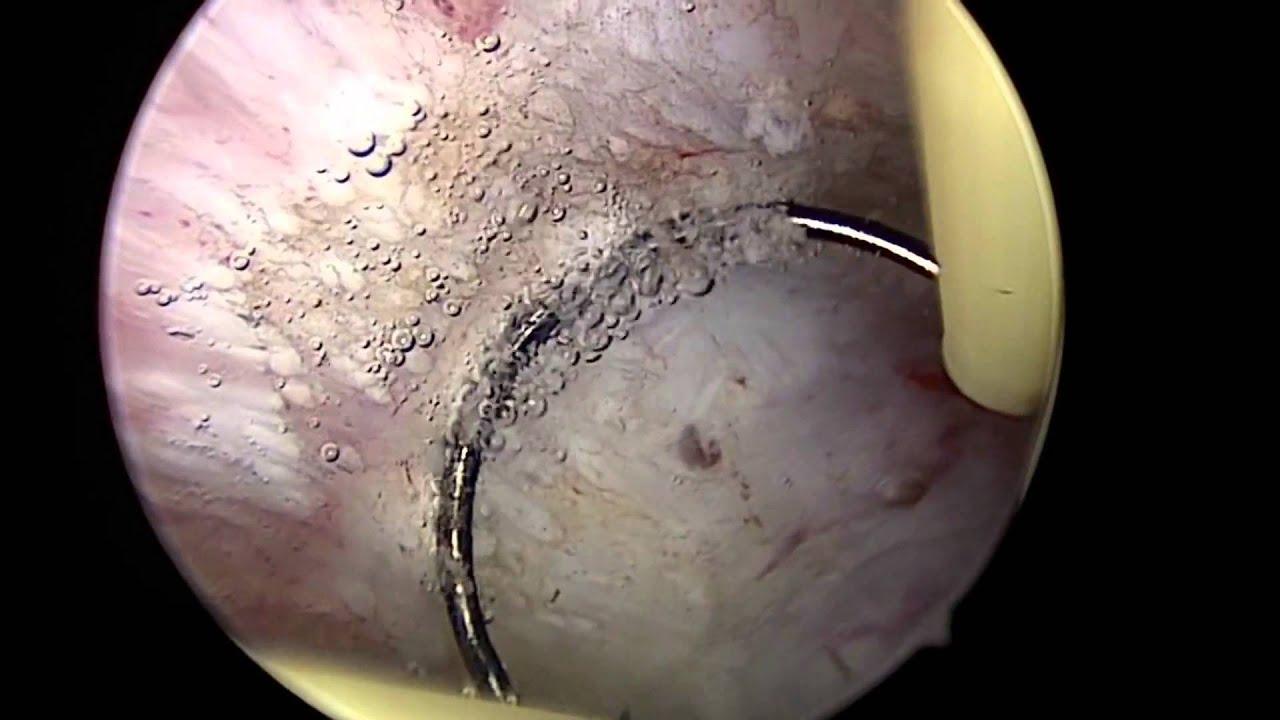 hysteroscopy d