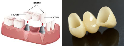 Crown and bridge procedure steps pdf